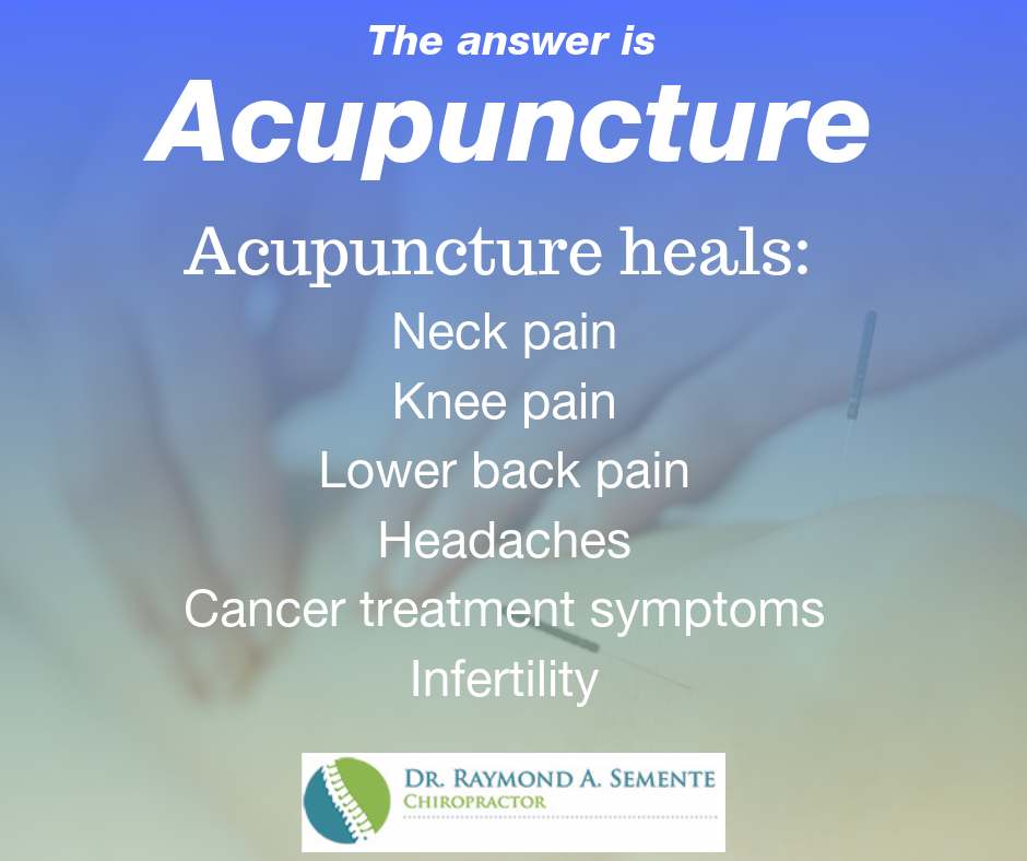 Acupuncture in St. James