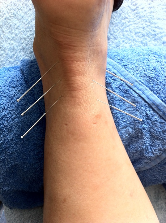 Acupuncture for Anxiety