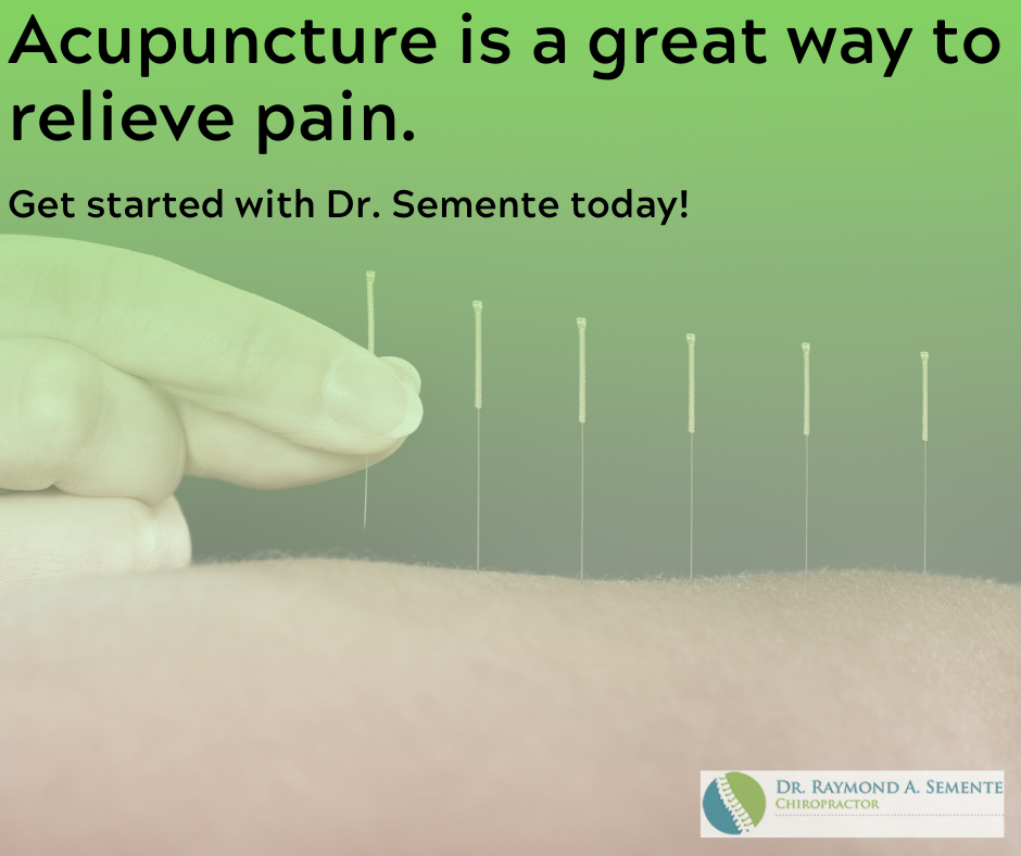 Can Acupuncture Help With My Pinched Nerve?